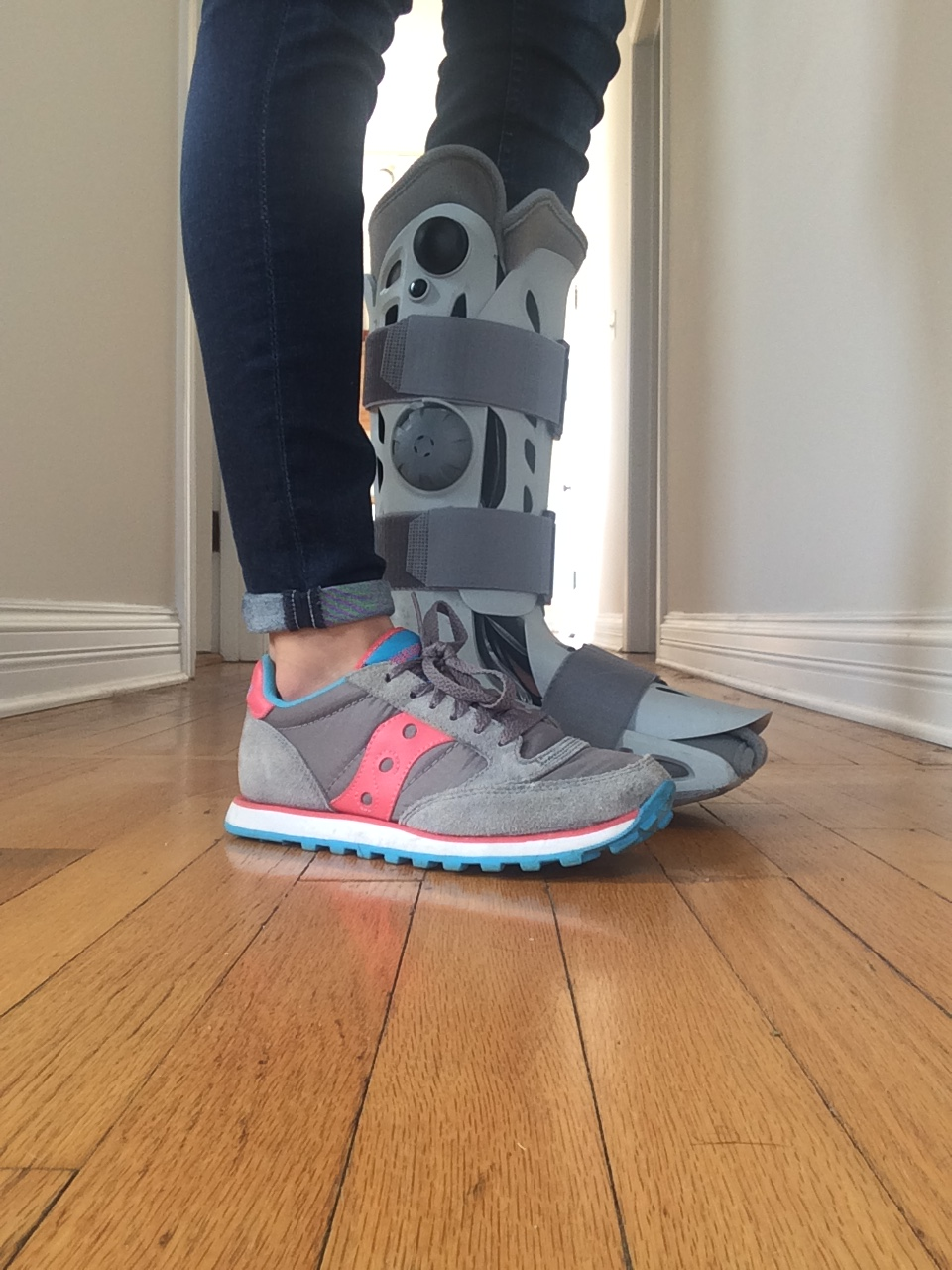 Recovering From a Stress Fracture: My Experience & A Guide